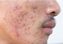acne-1__1536052353_182.72.207.26