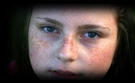 1 - 2 - freckles little girl