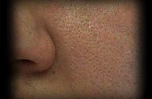 3 - 10 - large pores