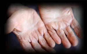 3 - 2 - cracked skin hands