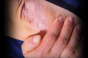 4 - 5 - psoriasis