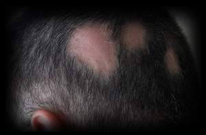 5 - 2 - bald patches 2