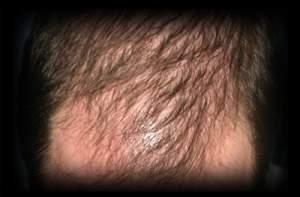 5 - 3 - male patterned baldness