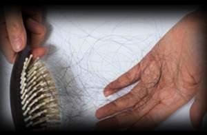 5 - 4 - hair fall