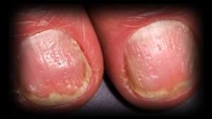7 - 2 - pitting of nail