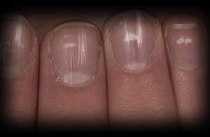 7 - 3 - white spots nail