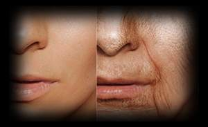 anti-ageing-treatment