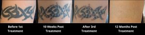 Tattoo Sessions