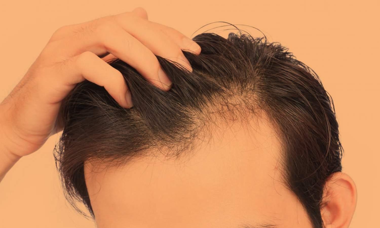 hairthinning